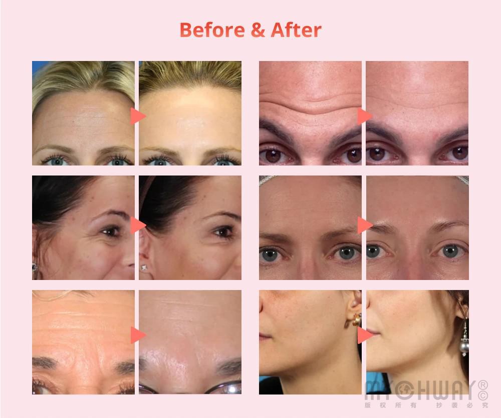 Microcurrent skin friming