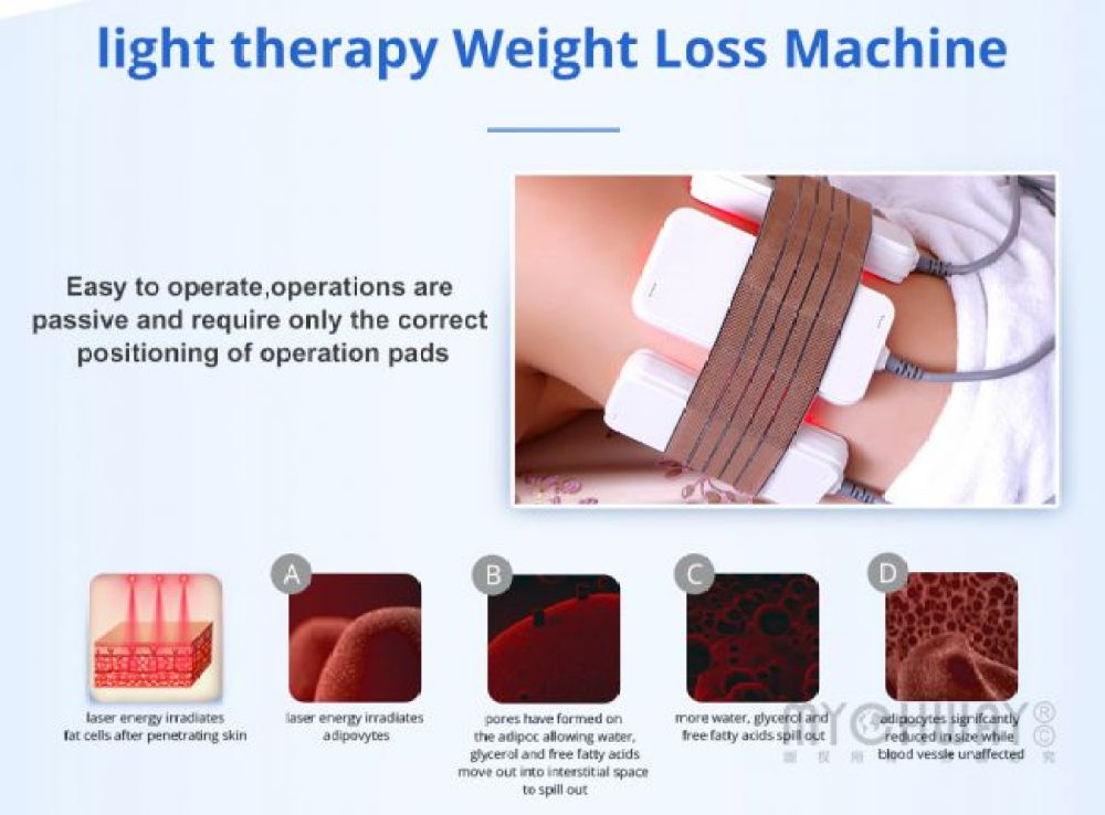 laser energy weight loss