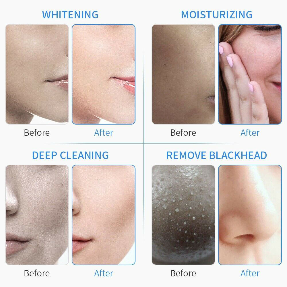 Facial Acne Removal