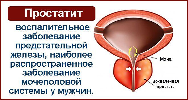 Цистит у женщин: симптомы, профилактика, лечение. Как отличить цистит от мочекаменной болезни