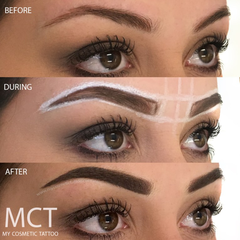 Before, during and immediately after powder finish brow tattoo.