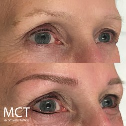 Eye lift created entirely by tattooing. Eyebrow 3D feathering and lower lash line.