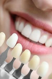 perbaikan gigi dental restoration