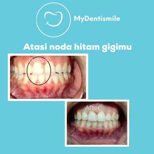 Gambar 1-Restorasi Gigi-min