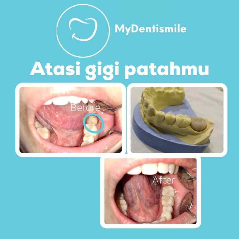 gigi patah