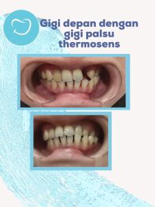 gigi depan dengan gigi palsu thermosens