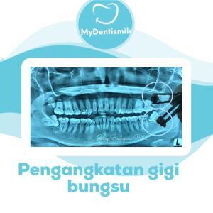 Pengangkatan gigi bungsu