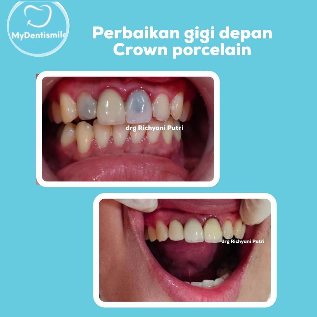 Perbaikan gigi depan crown porcelain