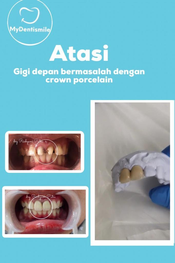 atasi gigi depan bermasalah dengan crown porcelain
