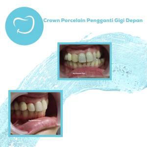crown porcelain pengganti gigi depan