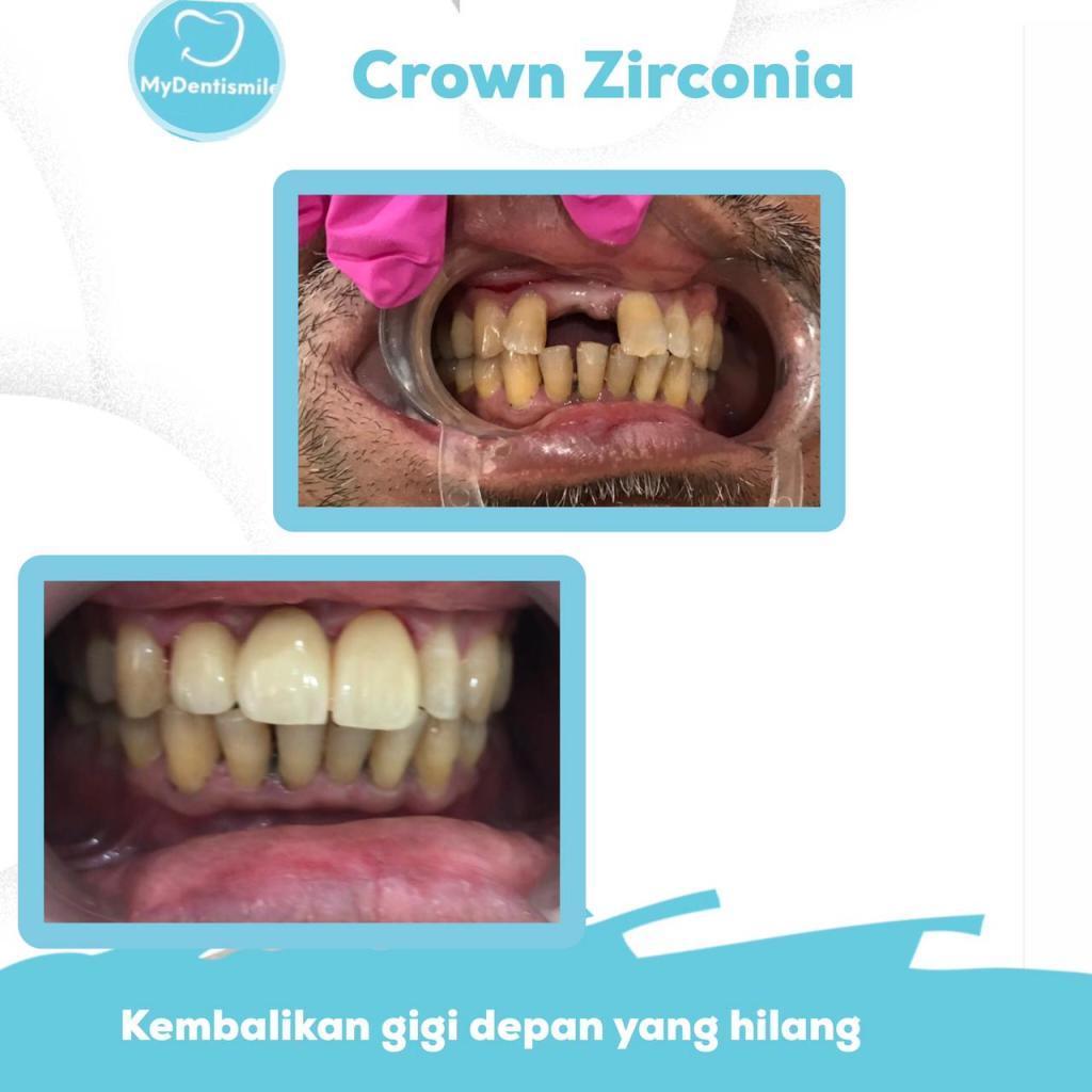crown zirconia