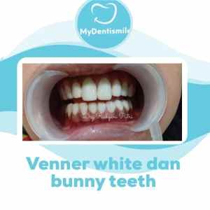 venner white dan bunny teeth