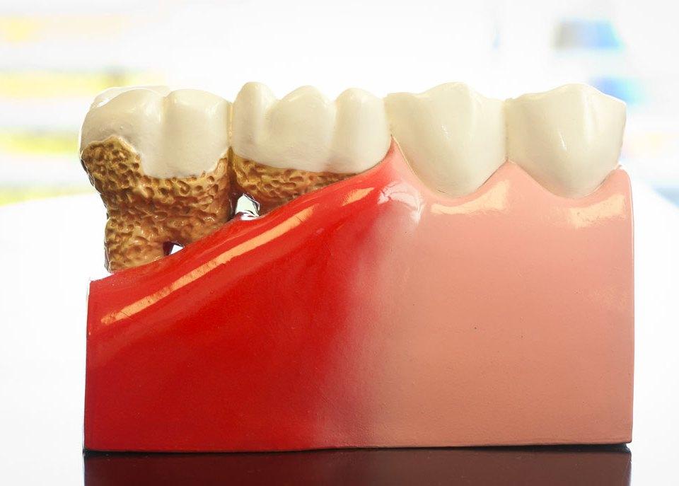 gum disease bc