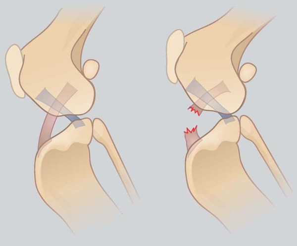 Talk To Me About Dog ACL/CCL Injuries: Anatomy of the Cruciate Ligament