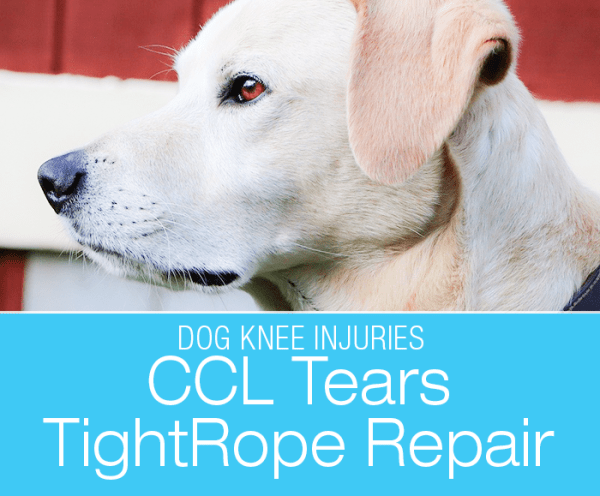 CCL Tears TightRope Repair: My Two Cents on the TightRope® CCL Fixation System