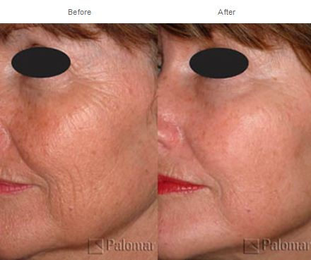 Laser results courtesy PUR Skin Clinic.