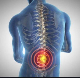 The Link Between Genetics and Back Pain