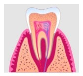 root canal treatment in Fairfax