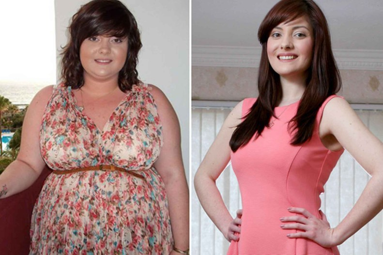 fat diminisher system weight loss after before