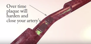 artery's