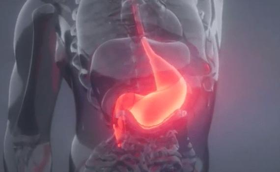 heartburn & hiatal hernia