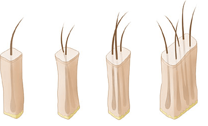 1s-2s-3s-and-slits