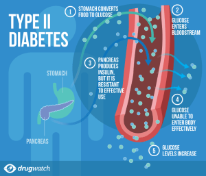 Type 2 Diabetes