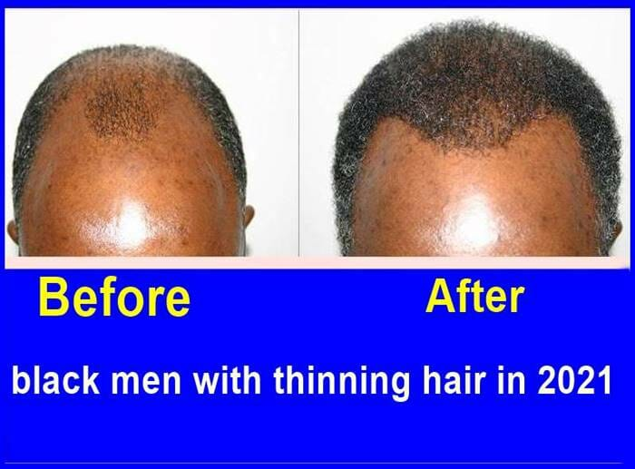 black men with thinning hair