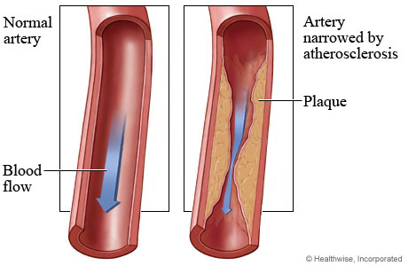 Image result for cardiovascular disease atherosclerosis