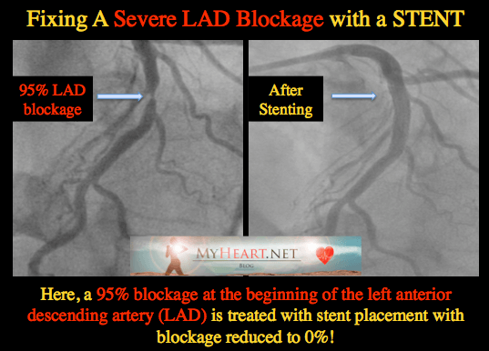 Blocked Left Anterior Descending Artery