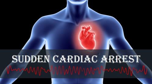 Image result for sudden cardiac arrest