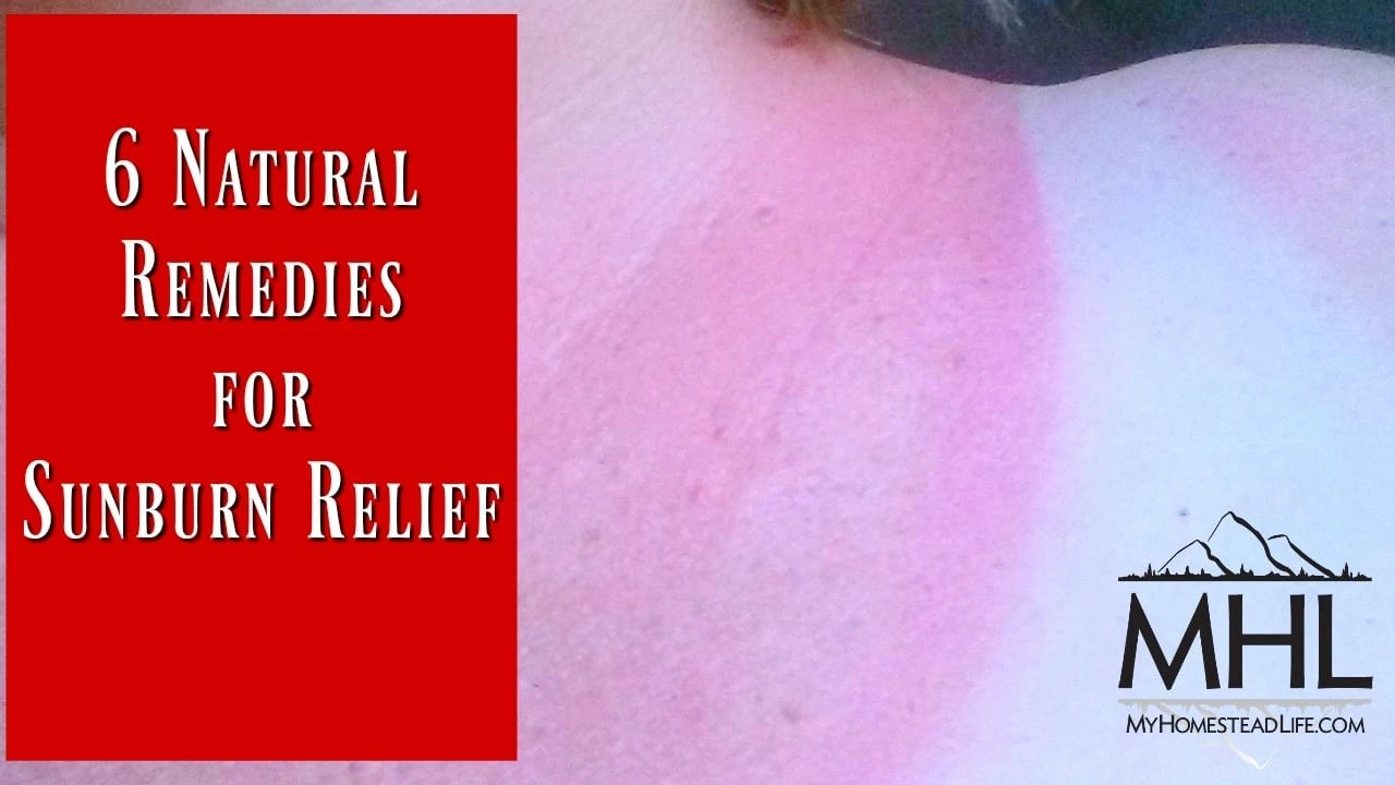 6 Home Remedies to Soothe a Sunburn recommend