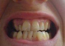 15.8.08 from camera teeth before Invisalign
