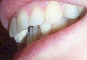 before invisalign overjet English teeth