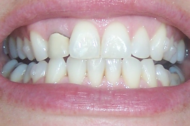 Invisalign before and after pictures - teeth nov 09 set 23