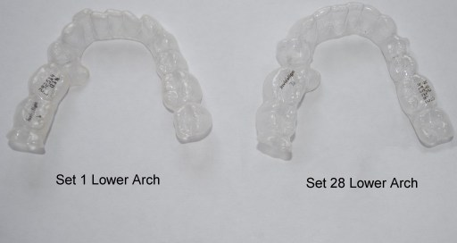 lower arch comparison 28