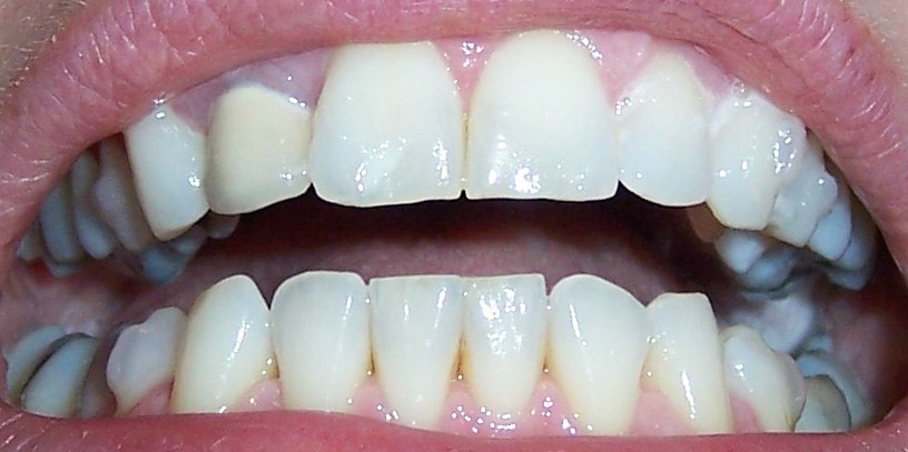 Invisalign before and after pictures - teeth set 29 tilt