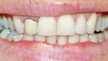 Tooth Whitening With Invisalign Aligners – My Invisalign Blog