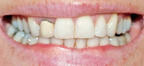Invisalign Compliance - image of teeth