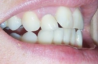Teeth Side View Before Invisalign Treatment