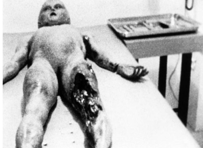 Gambar bedah siasat 'alien' dilelong RM4 juta