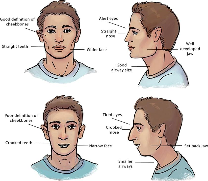 Mewing changes the physiological structure in your face from a Soy Boy to a Strong Man