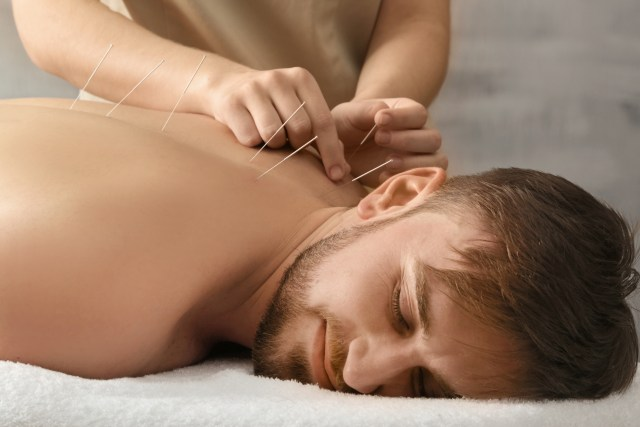 Young man getting acupuncture treatment