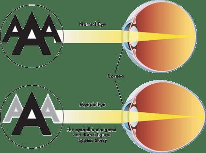 Highlight What Is Myopic Macular Degeneration My Macular