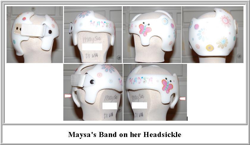 band_on_headsickle