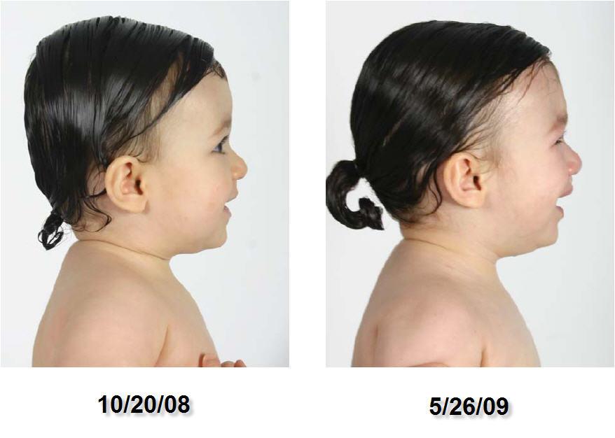 CT photo study right profile 10-20-08 to 05-26-09
