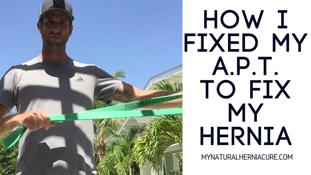 How I fixed My Inguinal Hernia
