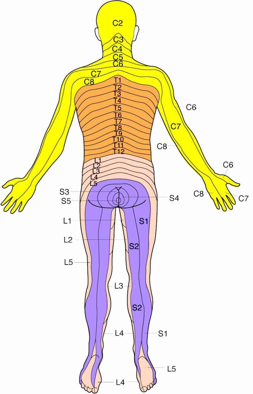Lumbar disc herniation dermatome posterior lge pooptronica