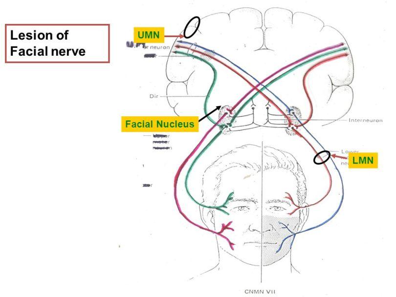 Cranial Nerve 7 Facial Nerve And Its Pathology