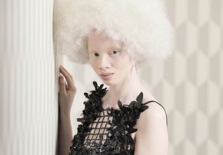 Killing of Albinos on the rise in Malawi